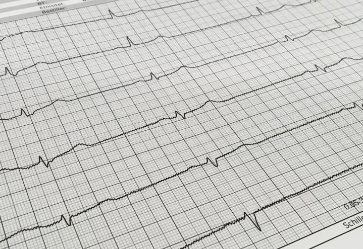 Kardiologiske undersøkelser og prosedyrer